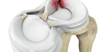 terd-meniscus