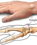 ganglion3