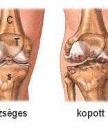 a lábak ízületeinek betegségei térd gonarthrosis)