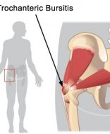 trochanter_bursitis